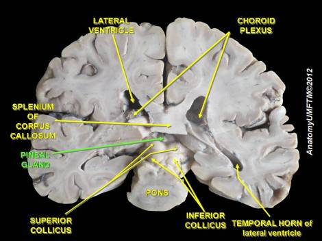 Pineal Gland Brain Location